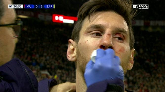Lionel Messi, le visage en sang après un duel costaud