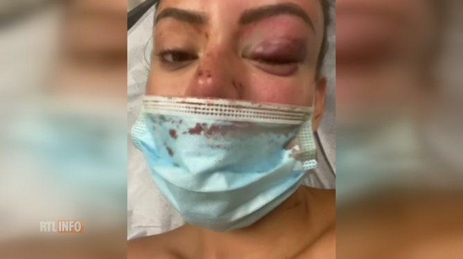 Yasmine (Princes et Princesses de l'Amour) DÉFIGURÉE: un homme l'a agressée dans son appartement